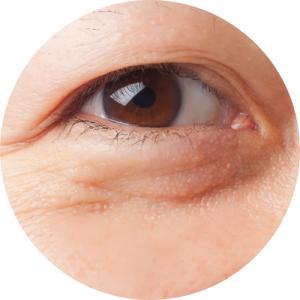azjatyckie oko ze zmarszczkami