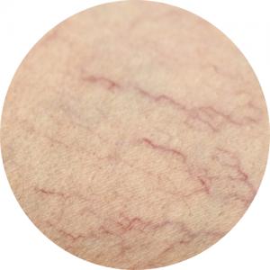 skóra z popękanymi naczynkami