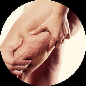 kobieta ściska cellulit na udzie